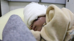 Besieged and starved: The forgotten suffering of Syria's children