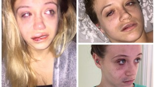 Shocking pictures released of woman 'repeatedly punched' by group of men during burglary