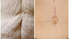 Claire opted to have the 'extreme tummy tuck' surgery after loosing weight.