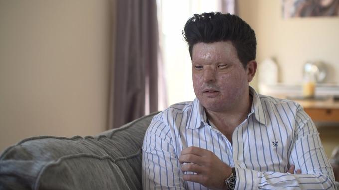 Andreas Christopheros, acid attack survivor