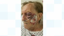Arthur 'Bob' Gumley suffered bruising to his left eye and requires surgery to his right arm.