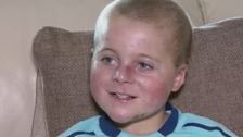 New hope for boy with rare skin condition
