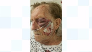 Daughter of beaten-up pensioner says he's become a 'scared, old man'