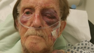Pensioner in critical condition after being robbed in his own home