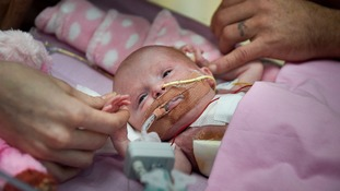 Vanellope Hope Wilkins, baby born with heart outside body, first in UK to survive