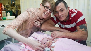 Vanellope is caressed and touched by her parents Naomi Findlay and Dean Wilkins, at Glenfield Hospital in Leicester.