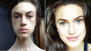 Before and after: Emelle Lewis