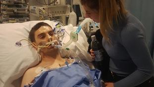 Jim Lynskey had open heart surgery to keep his hear beating