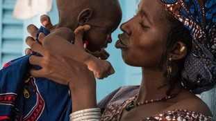 A mother cuddles her two-year-old daughter in Mali, who is suffering severe malnutrition.