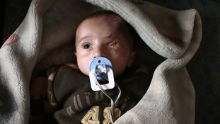The Syrian baby with one eye who is now in danger of losing the other