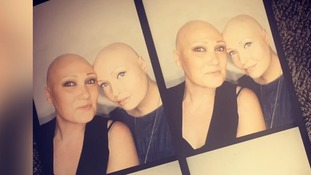 Carly (left) and Brenda are working to help women with alopecia feel comfortable in their own skin.