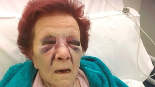 80-year-old Joan Ufton was left with horrific injures after the man broke into her home and ransacked it.