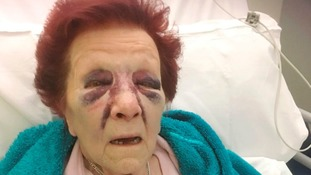 Joan Ufton, 80, was left with horrific injures after the man broke into her home and ransacked it.