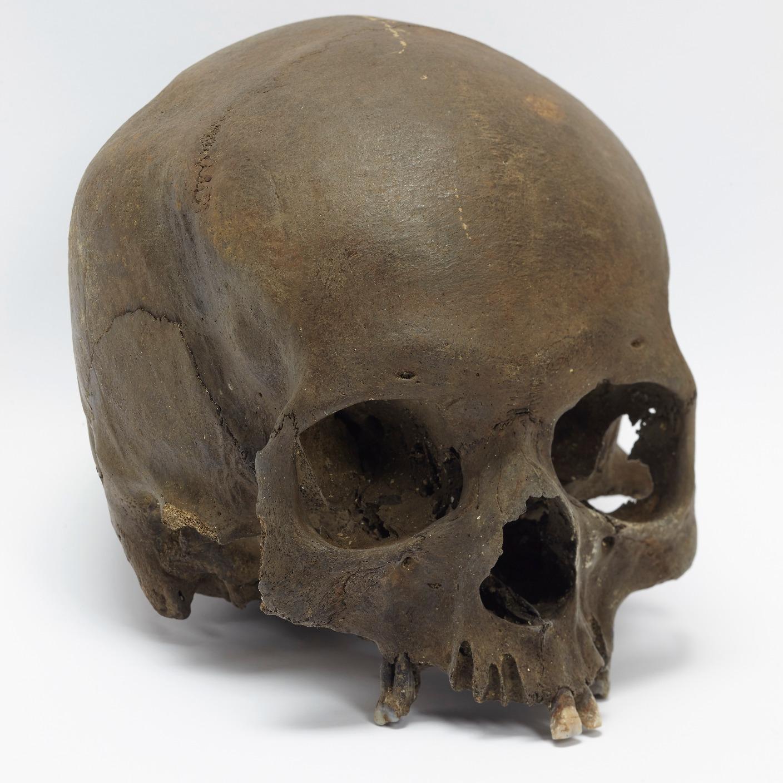 Dog Walker Finds Human Skull West Country Itv News