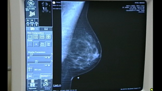 At risk women could get preventative breast cancer drugs 