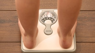 The number of under-18 female admissions for anorexia have also jumped.