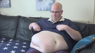 Man with giant hernia told it cannot be removed