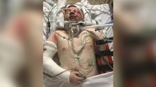 Hit and Run victim to fight for justice system overhaul