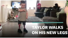 Three-year-old boy takes first steps on prosthetic legs