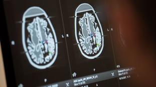 World Encephalitis Day aims to raise awareness of the brain condition