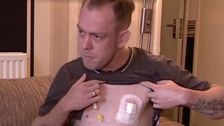 Man waiting for bowel transplant in organ donation plea