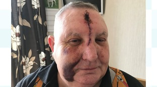 Man, 67, suffers serious injuries in Cambridgeshire road rage attack