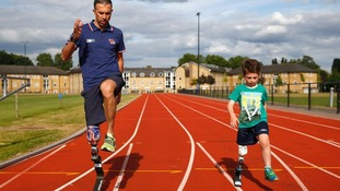 How activity limbs are transforming the lives of child amputees