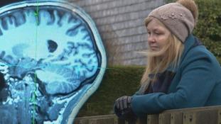 brain and karen