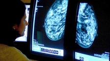 Screening remains the most effective procedure at diagnosing breast cancer at an early stage.