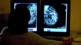 Call handlers for breast cancer screening hotline 'not medically trained'