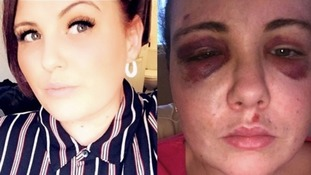 Lacey Knight before and after the attack