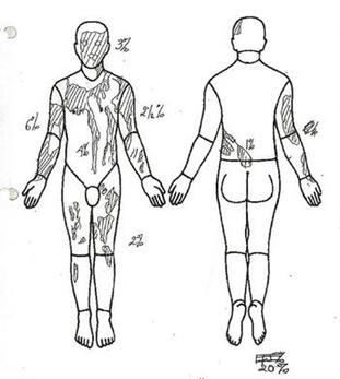 A body map showing the injuries on Mark van Dongen from the acid attack.