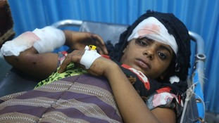 An injured girl being treated at a hospital in Hodeida.