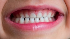 Significant improvement in child tooth decay