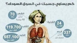 Diagrams showing how much organs can sell for are common on social media.