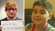 Suffolk singer-songwriter Ed Sheeran joined Jasmi's campaign to get more people to join the transplant register.