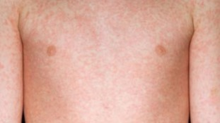 Measles widespread in Bristol after rise in cases