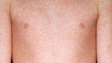measles case
