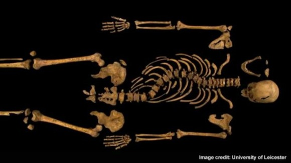 The complete remains of Richard III, above, show the monarch had a curvature of the spine.
