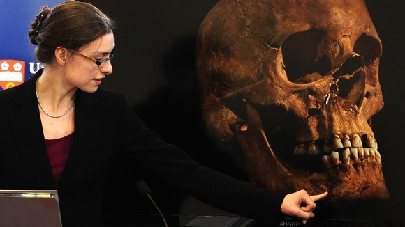Jo Appleby, a lecturer in Human Bioarchaeology points to details of the King's skull
