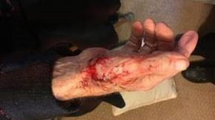 The victim's hands were slashed as he tried to protect his home.