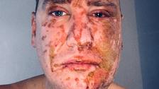 Acid victim waives anonymity in bid to catch attacker