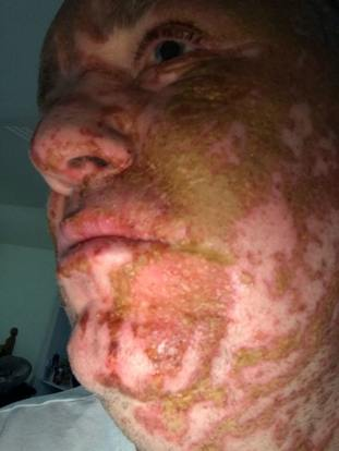 Andrew Walker suffered life-changing injuries when a stranger threw acid over his face and arms in January