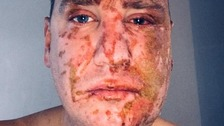 Acid attack victim appeals to find man who disfigured him