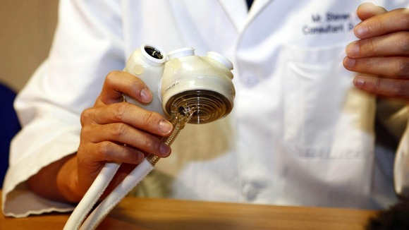 A Total Artificial Heart at Papworth Hospital where patient Matthew Green became the first person in the UK to receive one