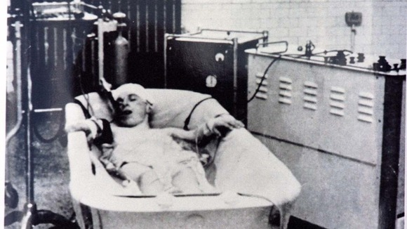 An undated picture of a patient at Papworth Hospital in a bath of cold water before heart surgery