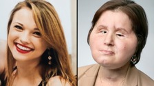 Woman who shot herself gets 'second chance' face transplant