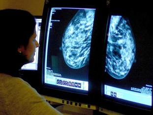 Breast Cancer Care survey