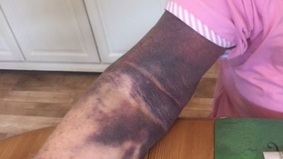 Mrs Turpin is now recovering from severe bruising at home