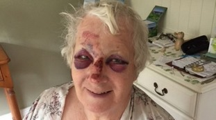 Jeanette Turpin suffered head, arm, leg and shoulder injuries.